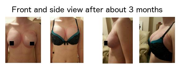 Ratings surgery breast pump