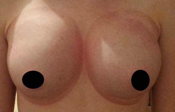Red Rings Around Breasts